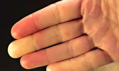 Are you really sensitive to cold? Raynaud's syndrome could be…